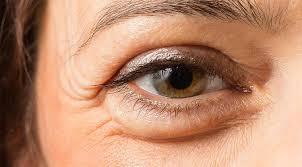 Cara Mengatasi kantung Mata